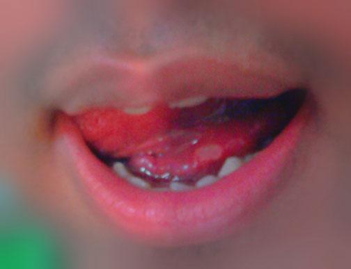 بيماري هاي دهاني,آفت دهان,جلوگيري از افت دهان,مرض هاي دهاني,بيماري هاي دهان و لثه ها,بيماري هاي دهان و زبان,جلوگيري از بيماري و آفت دهان و زبان,راه هاي مقابله و از بين بردن آفت دهان,كاهش درد و بيماري دهان و زبان