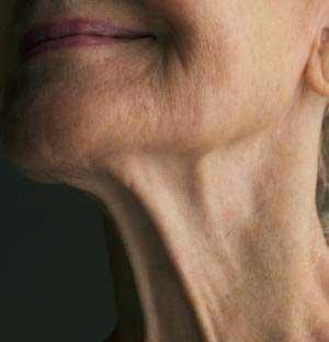 جلوگیری از چروک پوست,داروهای جلوگیری از چروک پوست,آموزش ساخت داروی صد چروک,داروی ضد چروک پوست,جلوگیری از چروک پوست صورت,آموزش جلوگیری از افتادگی پوست صورت,راه های درمان افتادگی پوست گلو,بهترین راه جلوگیری از چروک پوست گلو و گردن