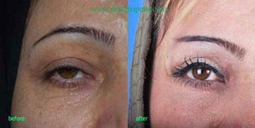جراحی زیبایی صورت, عمل جراحی ابرو
