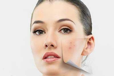 جوش صورت و درمان جوش