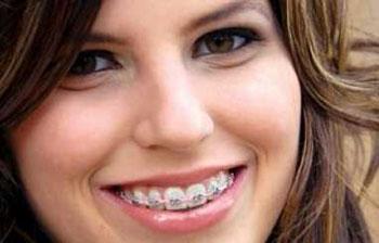 ازبین بردن فاصله بین دندان ها,آموزش جراحی دندان,بهترین جراحان دندان,سایت ارتودنستی,بهترین جراحان ارتونسی,قیمت ارتودنسی دندان ها,ازبین بردن فاصله دندان ها با ارتودنسی,ازبین بردن فاصله دندان ها با کامپوزیت