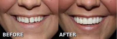 کامپوزیت روی دندان,ارتودنستی دندان,ترمیم دندان,از بین بردن فاصله دندان