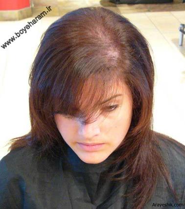 ریزش مو,عدم ریزش مو,چه بکنیم موهایمان نریزد,راه های نگه داشتن مو,غذاهای محکم کننده پیازمو,بهترین راه جلوگیری از ریزش مو,خوراکی های جلوگیری کننده ریزش مو,چه کنیم کچل نشویم؟,راه های درمان ریز مو,داروهای درمان ریزش مو,شامپوهایی برای درمان ریزش مو