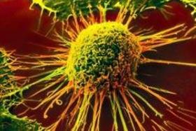 سرطان سينه,علائم سرطان سینه,نشانه های سرطان سینه,سرطان پستان,پیشگیری از سرطان سینه,کیستهای پستان,راههای تشخیص سرطان سینه,تودههای پستانی,بیماریهای زنان
