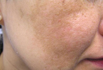 لکه های صورت,درمان لکه های صورت,ازبین بردن لکه های صورت