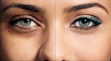 درمان کبودی و سیاهی دور چشم