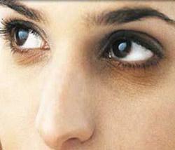 کبودی چشم,دلایل کبودی چشم,کبودی اطراف چشم,دلیل کبودی اطراف چشم,درمان کبودی اطراف چشم,درمان سیاهی اطراف چشم,ازبین بردن سیاهی و کبودی اطراف چشم,علل سیاهی و کبودی اطراف چشم