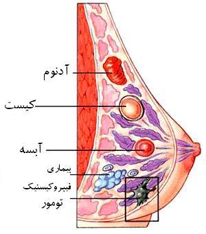 کیست پستان, کیست سینه,علائم کیست سینه,علائم کیست پستان,درمان کیست پستان,نشانه های کیست سینه,نشانه های کیست پستان,فیبروکیستیک پستان,بهداشت بانوان,بیماریهای زنان