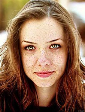 کک و مک,درماخ لکه صورت,درمان خال های صورت,خال های سیاه صورت,درمان آکنه پوست