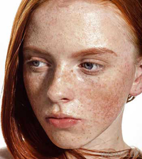 Cause of freckles and treatment