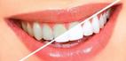 راه و روش هاي سفيدتر كردن دندان