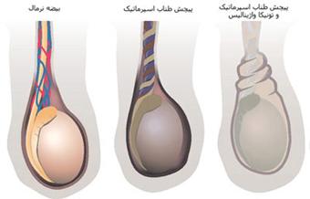 Testicular torsion,پیچش بیضه