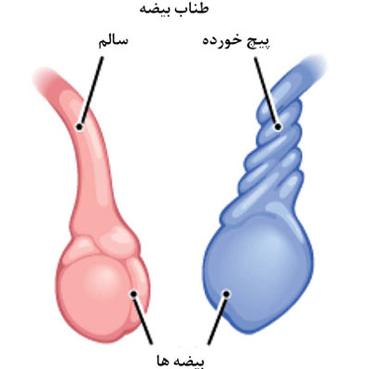 پیچش بیضه,پیچ خوردن بیضه,بیضه پیچ خورده,Testicular torsion