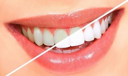 سفيد كردن داندان,راز هاي سفيدتر كردن دندان,رازهاي دندان مرواريدي,راه و روش مرواريدي كردن دندان,چيكاركنيم دندان سفيد داشته باشيم؟,چه كاري كنيم دندان مرواريدي داشته باشيم؟,ترفند هاي سفيد كردن دندان,سفيد كردن,مرواريدي كردن,سفيدترين دندان,ساده ترين روش هاي سفيد كردن دندان