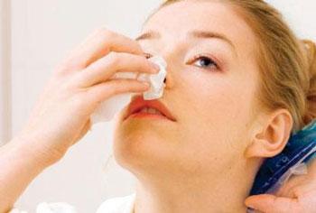 پاره شدن مویرگ های بینی,خونریزی از بینی در تابستان,جراحی زیبایی بینی,دلايل خون دماغ شدن,درمان خون دماغ,خون دماغ,مویرگ های بینی,خون دماغ در تابستان,خونریزی بینی,