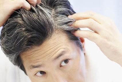 آموزش جلوگیری از ریزش مو,شامپوهای ضد ریزش مو