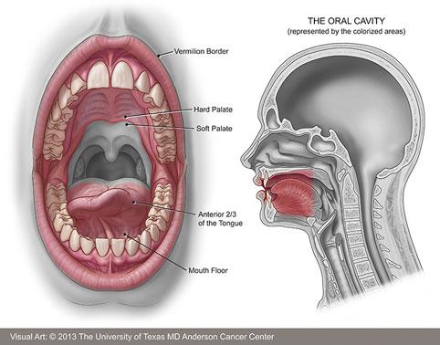 بهداشت دهان و دندان در دوران بارداری,تومور لثه در بارداری