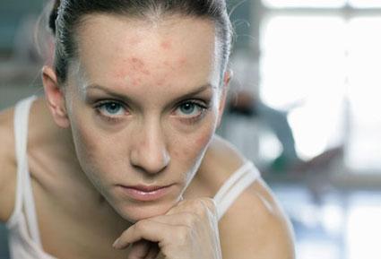 جوشهای صورت,درمان جوش,جوش زدن در بزگسالی,جوش زدن بعد از سن بلوغ