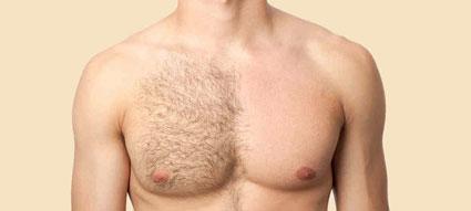 کاهش موهای زاید بدن,آموزش ازبین بردن موهای زاید بدن,کاهش موهای زاید بدن
