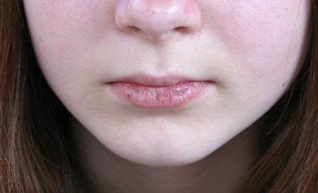 استفاده از کرم های لب,لطافت لبها,خشکی پوست,مهمترین عامل خشکی پوست