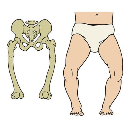 نرمی استخوان در کودکان,عوارض جانبی راشیتیسم,دلایل به وجود آمدن راشیتیسم