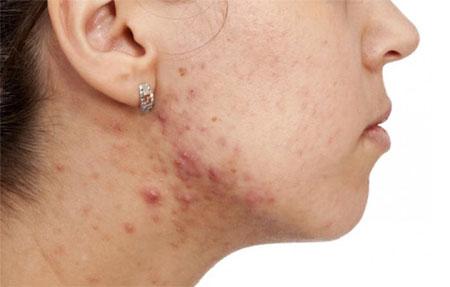 انواع آکنه های پوست,درمان آکنه پوست,درمان جوش پوستی