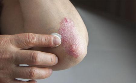 درمان بیماری های پوستی,آشنایی با انواع بیماری های پوستی