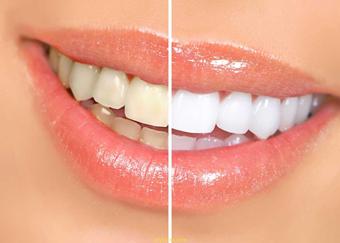 زردی دندان,جلوگیری از زردی دندان,سفید کردن دندان
