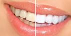 بهترین راه  جلوگیری از زردی و لکه دندان چیست؟
