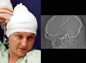 چاقو در سر,مردی که سه سال چاقو در سر داشت