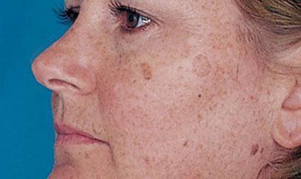 لکه قهوه ای صورت و پوست,ازبین بردن لکه قهوه ای صورت و پوست