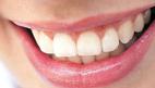 راه هاي پيشگيري از پوسيدگي دندان