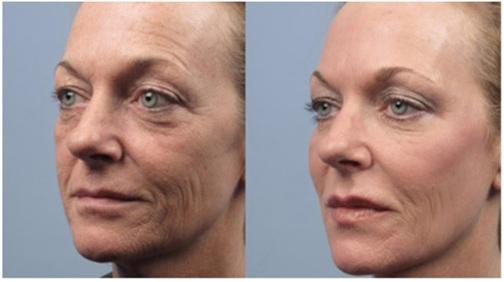کاهش افتادگی پوست,آموزش ازبین بردن افتادگی پوست