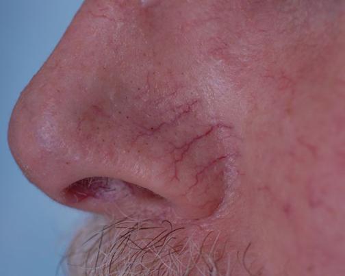 کاهش دادن واریس صورت,عامل اصلی واریس صورت
