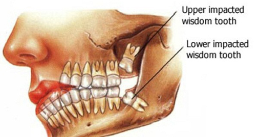 ازبین بردن دندان عقل,ضررهای کشیدن دندان عقل