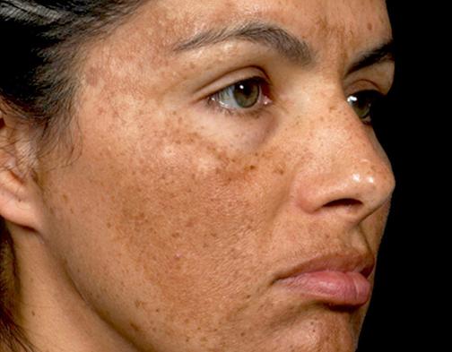 ازبین بردن لکه های پوست حاملگی,درمان لکه های پوست در زمان حاملگی