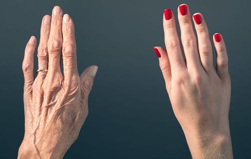 ازبین بردن لک های سیاه روی دست,دلیل لک های سیاه روی دست