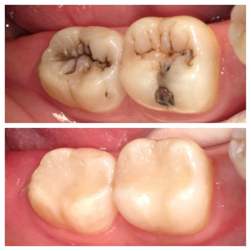 تصاویر اعصاب کشی دندان,دندان کی اعصاب کشی میشود
