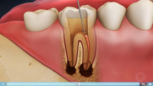 آموزش های پزشکی,دندان درد,درمان دندان درد