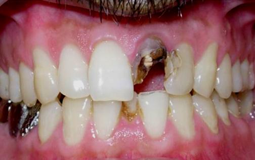 روش های اعصاب کشی دندان,تصاویر اعصاب کشی دندان