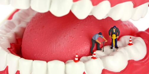 آموزش پر کردن دندان,اعصاب کشی دندان,آموزش اعصاب کشی دندان