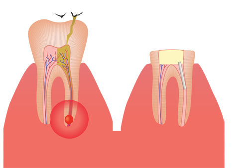 سلامت,سایت سلامت,سایت پزشکی,آموزش های پزشکی,دندان درد,درمان دندان درد,پر کردن دندان