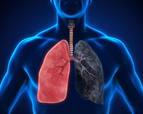 طب سنتی برای درمان سرطان ریه,داروهای گیاهی برای درمان سرطان ریه