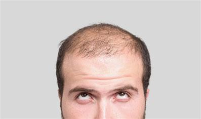 عامل اصلی ریزش مو در دوران جوانی,جلوگیری از ریزش مو دوران جوانی