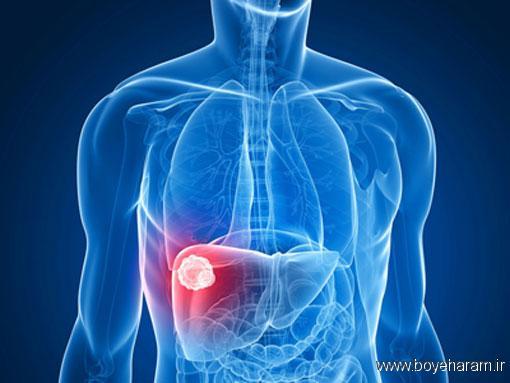 عوامل اصلی سرطان کبد,عمل جراحی سرطان کبد