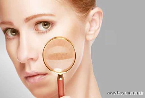 عدم تقارن در صورت نشان چه بیماری است؟,توده زردرنگ روی پلک ها به چه علت ایجاد می شود؟,راش پوستی پروانه ای نشانه چه بیماری است؟