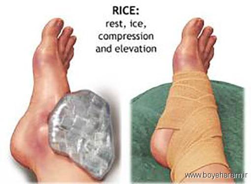 سلامت,سایت سلامت,سایت پزشکی,آموزش های پزشکی,تشخیص صدمات جسمانی