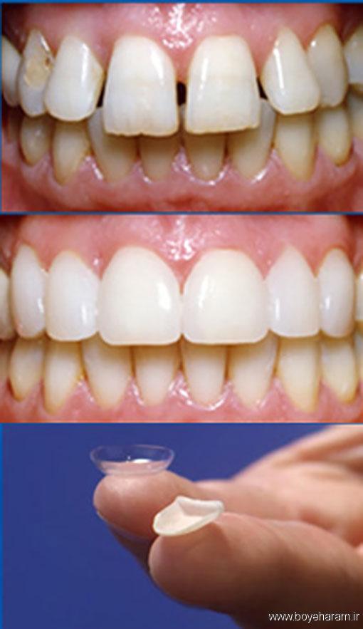 نازکی لمینت دندان چقدر است؟,عوارضی که برای درمان لمنیت هست