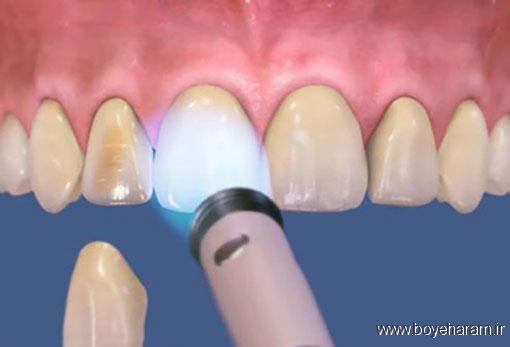 دندان پزشکی,اطلاعاتی درباره لمینت دندان,لمینت دندان,انواع لمینت دندان