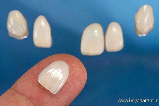 انواع لمینت دندان,چه افرادی نمیتوانند از لمینت دندان استفاده کنند؟